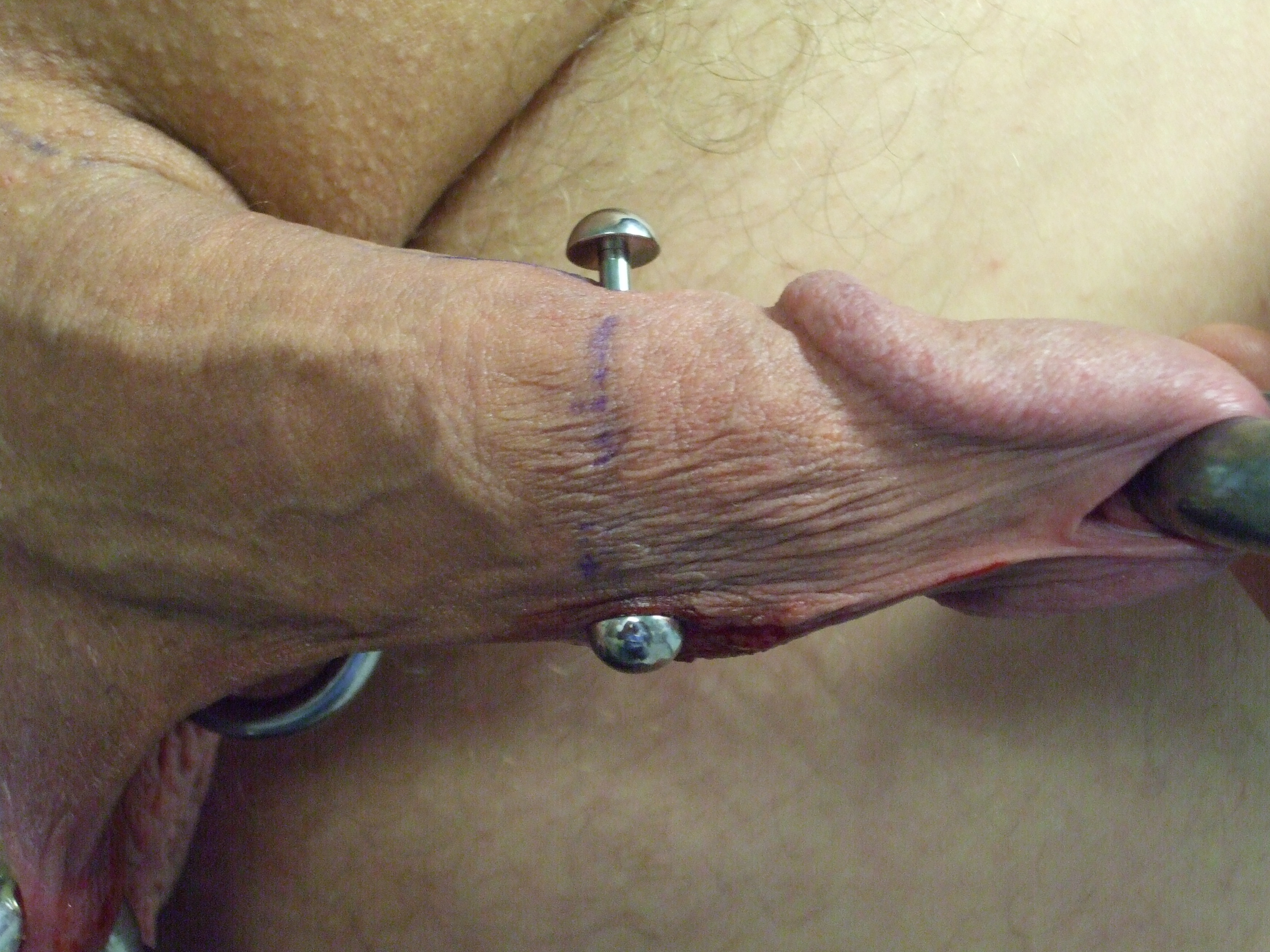 Best value piercing in penis great deals on piercing in penis