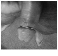 Have plug and ring…wife wants PA